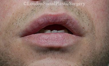 Lip Augmentation & Reduction After 13