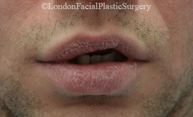Lip Augmentation & Reduction Before 13