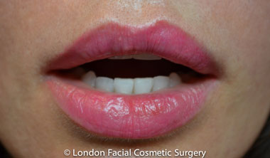 Lip Augmentation & Reduction After 15