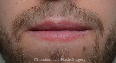 Lip Augmentation & Reduction After 14