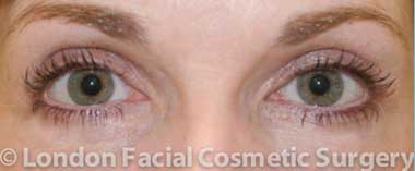 Eyelid Surgery (Blepharoplasty) After 1