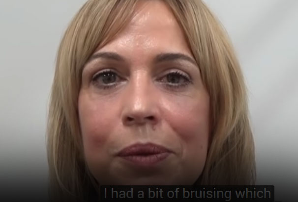 Watch Video: My personal experience of upper and lower blepharoplasty with Dr. Julian De Silva