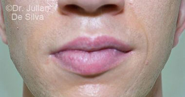 Lip Augmentation & Reduction After 2