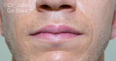 Lip Augmentation & Reduction Before 2