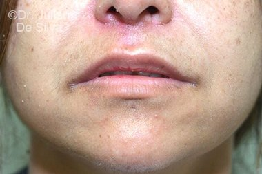 Lip Augmentation & Reduction After 9