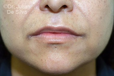 Lip Augmentation & Reduction Before 9