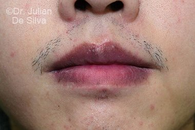 Lip Augmentation & Reduction After 6