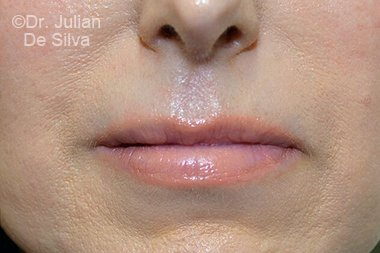 Lip Augmentation & Reduction After 5