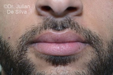 Lip Augmentation & Reduction After 4