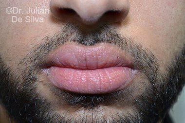 Lip Augmentation & Reduction Before 4