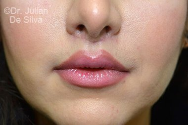 Lip Augmentation & Reduction After 11