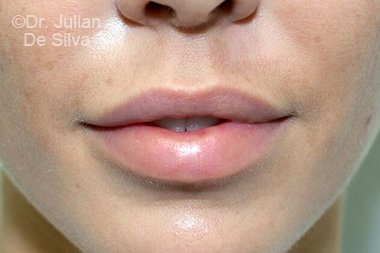 Lip Augmentation & Reduction Before 10