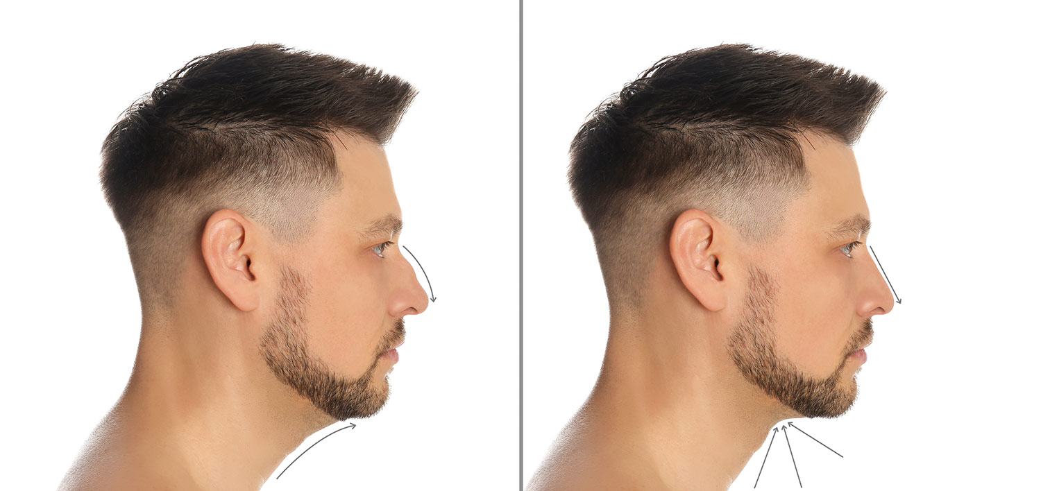 Male face, Before and After rhinoplasty treatment, right side view
