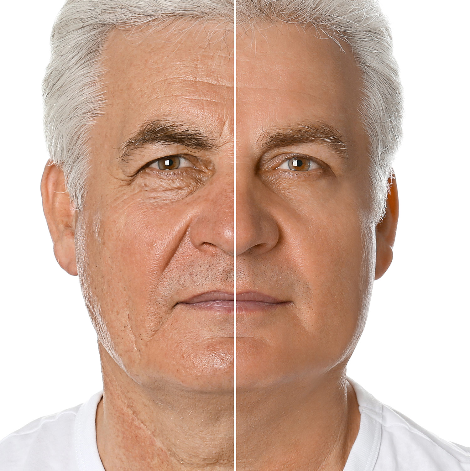 Male face, Before and After Blepharoplasty Treatment, front view