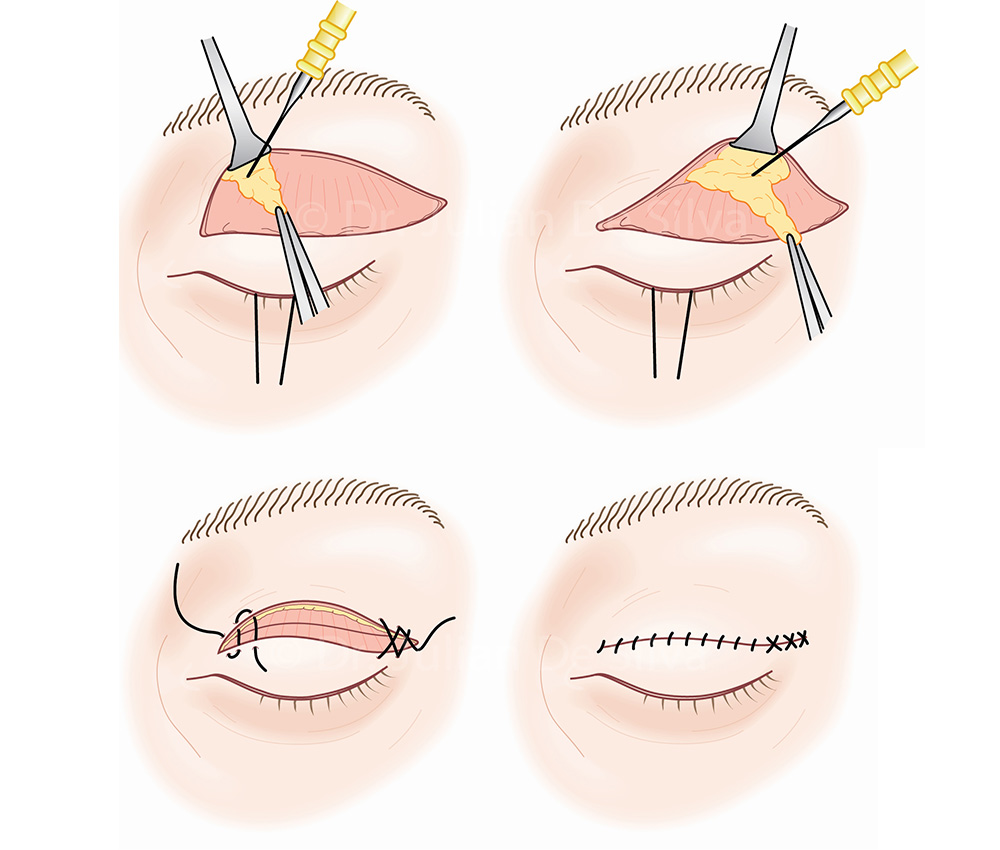 Upper Eyelid (Blepharoplasty) Surgery - Step-3 and Step-4