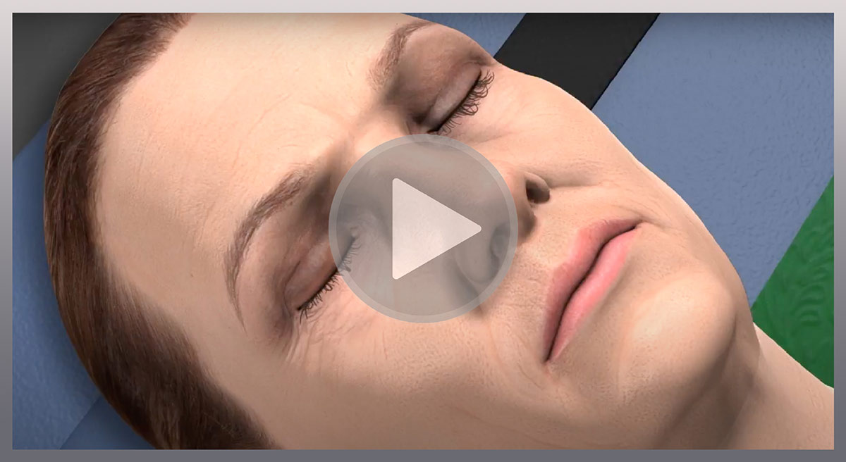 Watch Video: Upper Blepharoplasty - How is it done? An animation showing how upper eyelid surgery is completed.
