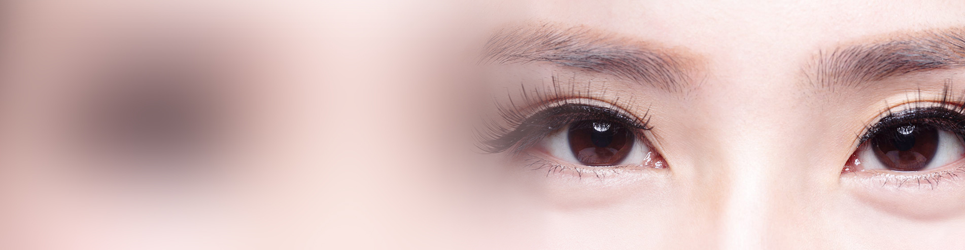 Asian Blepharoplasty - before and after female
