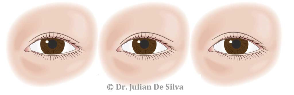 Different types of Asian eyelid creases