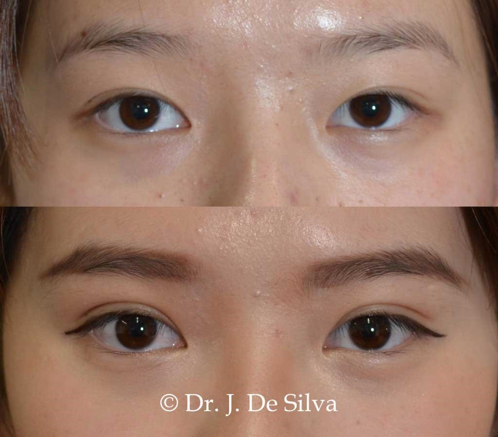 Woman's face, Before and After Asian blepharoplasty Treatment, female patient front view