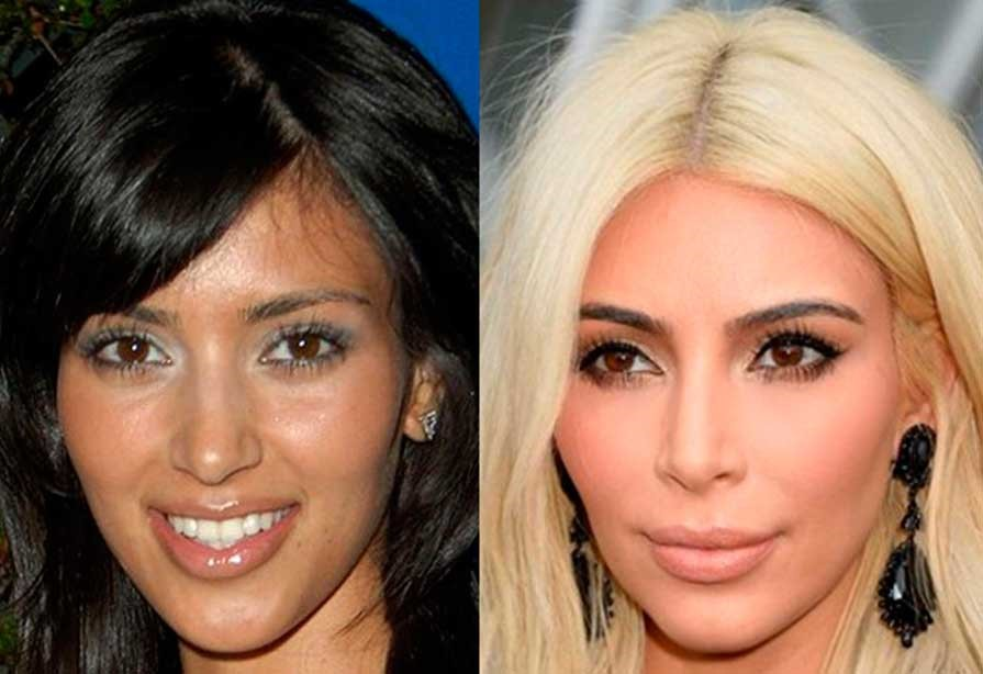 Kim Kardashian's nose before and after rhinoplasty, front view