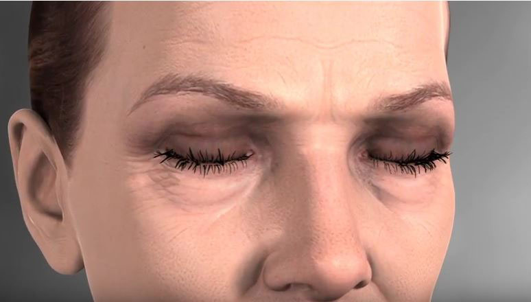 Watch Video: Blepharoplasty Animation – How is Lower Blepharoplasty/ Eyelid Surgery completed?