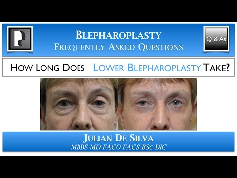 Watch Video: How LONG will Lower Blepharoplasty Take? What length of time is an Lo