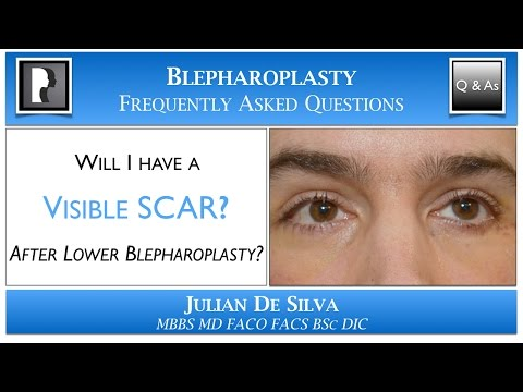 Watch Video: Will I have a Visible Scar after Lower Blepharoplasty? Scar after an lowe