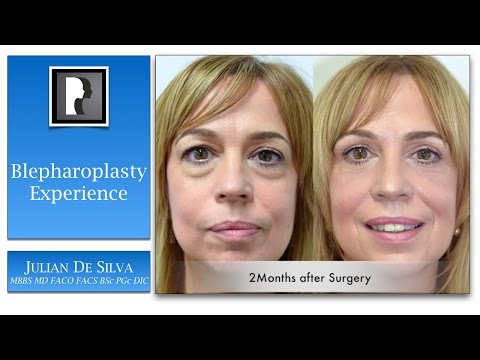 Watch Video: About blepharoplasty surgery eyelid lift, video 2