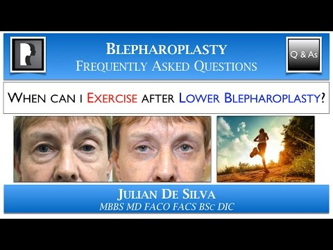 Watch Video: About blepharoplasty surgery eyelid lift, video 4