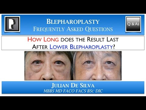 Watch Video: HOW LONG does the result last after Lower Blepharoplasty? How many YEARS -lower eyelid surgery last?
