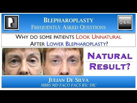 Watch Video: Why do some patients Look UNNATURAL after Lower Blepharoplasty?