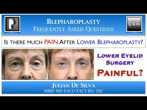 Watch Video: Will I have PAIN after Lower Blepharoplasty?