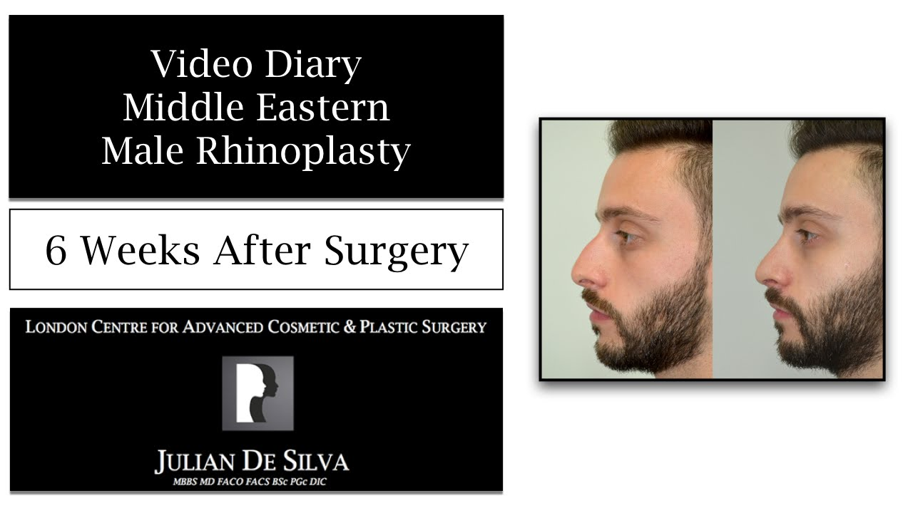 Watch Video: 15 Middle Eastern Male Rhinoplasty Video Diary 6 Weeks After Surgery