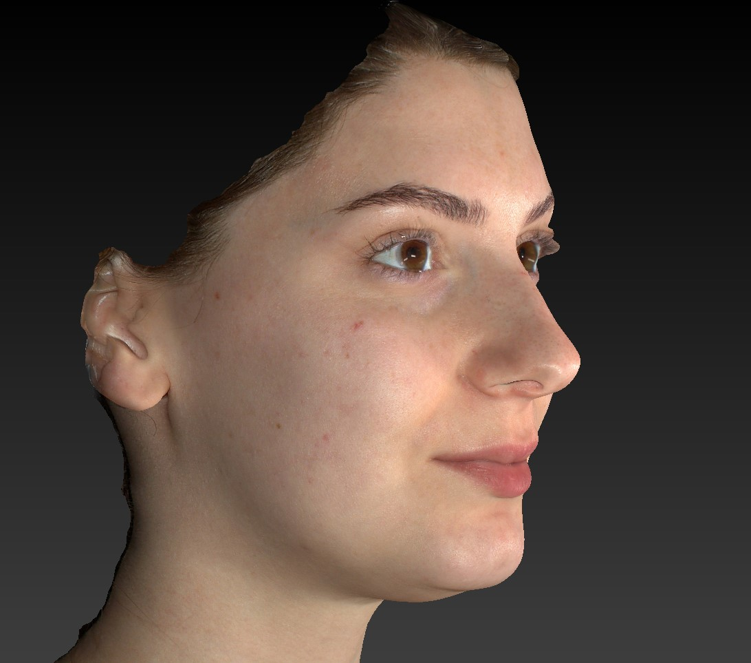 Modern Anaesthesia - 3d model face