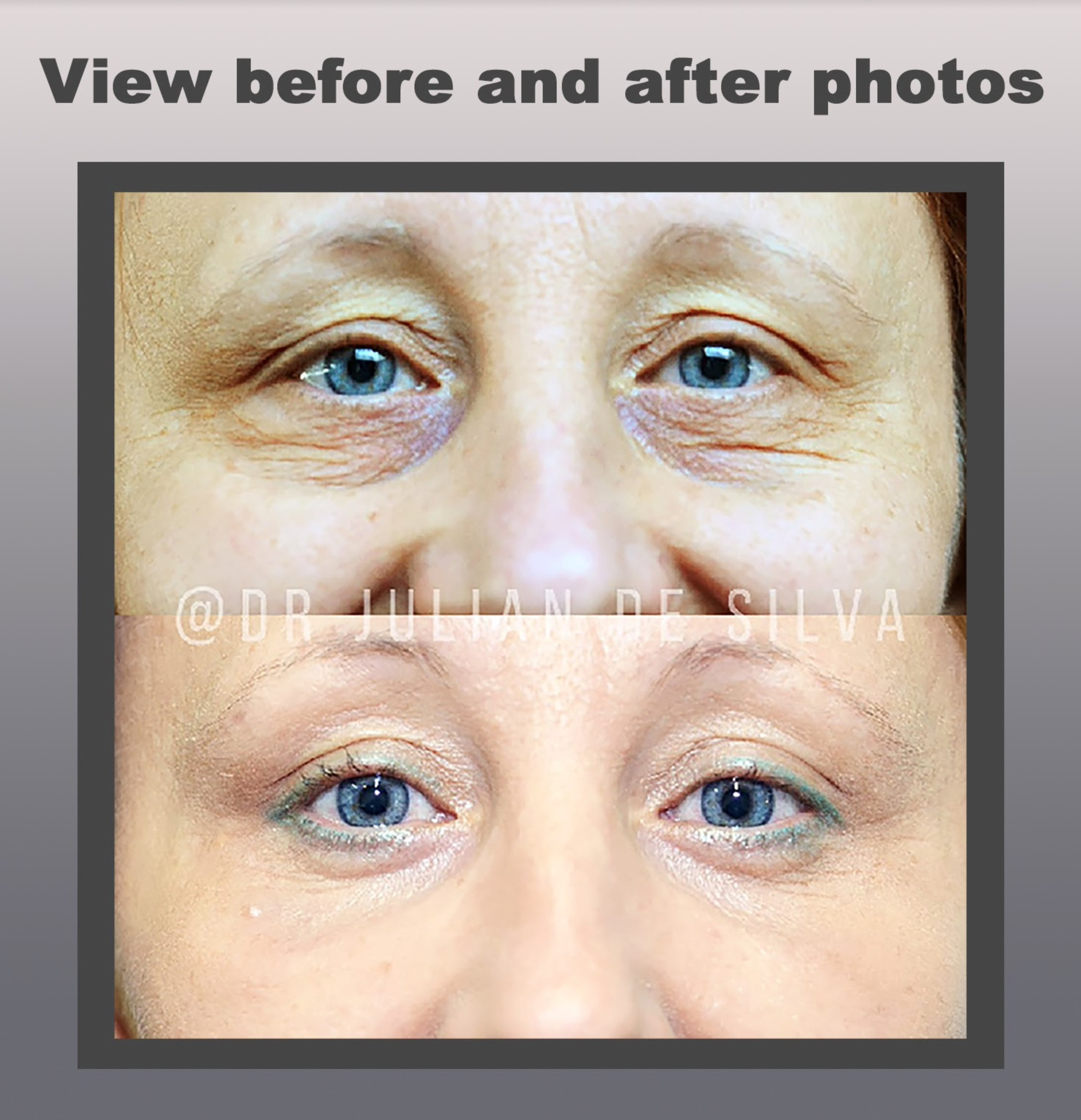 View before and after photos: Revision Blepharoplasty
