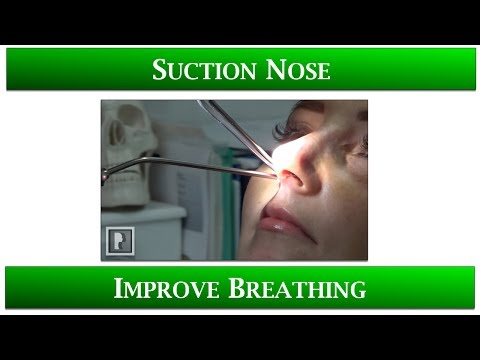 Watch Video: 1st Appointment after Rhinoplasty- 4 Suctioning your Nose to improve breathing