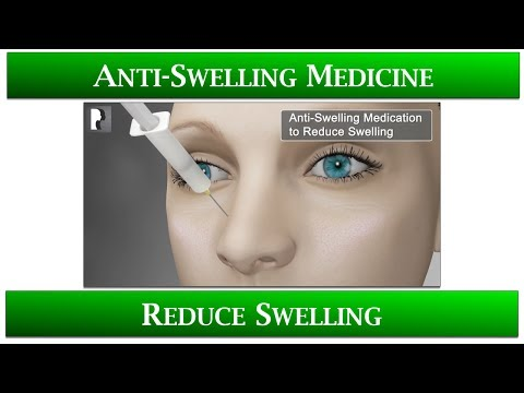 Watch Video: 1st Appointment after Rhinoplasty- 5 Anti-Swelling Medicine to reduce swelling: Speed up healing