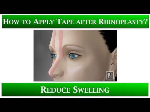 Watch Video: 1st Appointment after Rhinoplasty- 6 Taping your nose to reduce swelling: Speed up healing