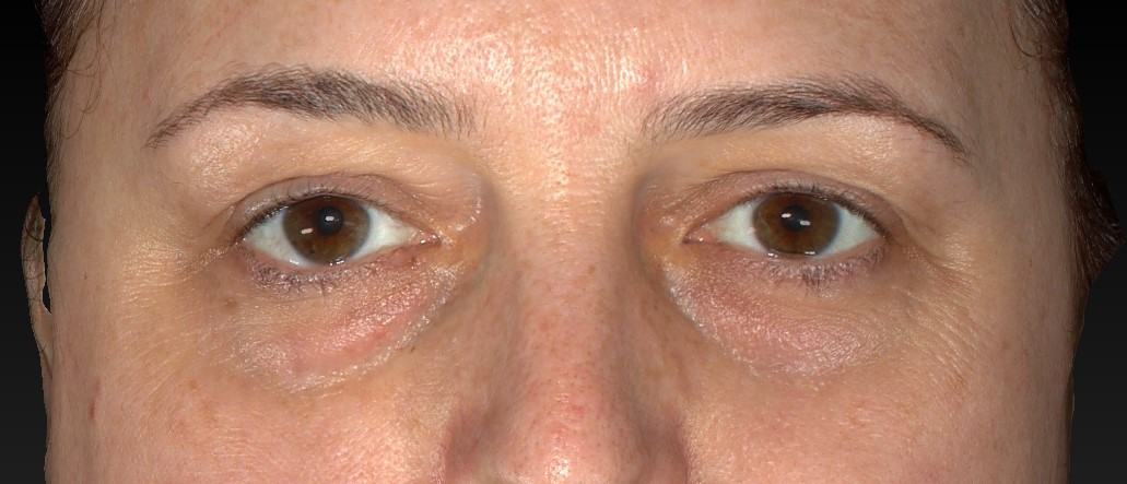 Patient face, Lower Eyelid (Blepharoplasty) Technique - front view