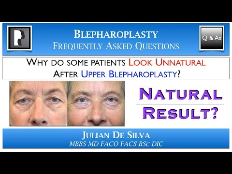 Watch YouTube: Why do some patients Look UNNATURAL after Upper Blepharoplasty?