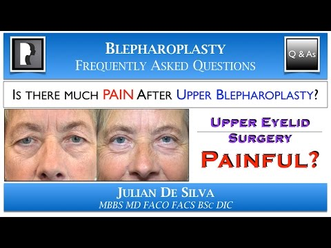 Watch YouTube: Will I have PAIN after Upper Blepharoplasty?
