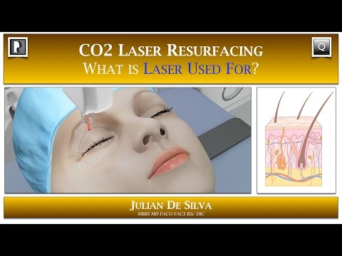 Watch Video: Skin & Laser Question- How can CO2 Laser Skin Resurfacing benefit me?
