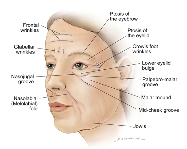 Scheme wrinkles on the face