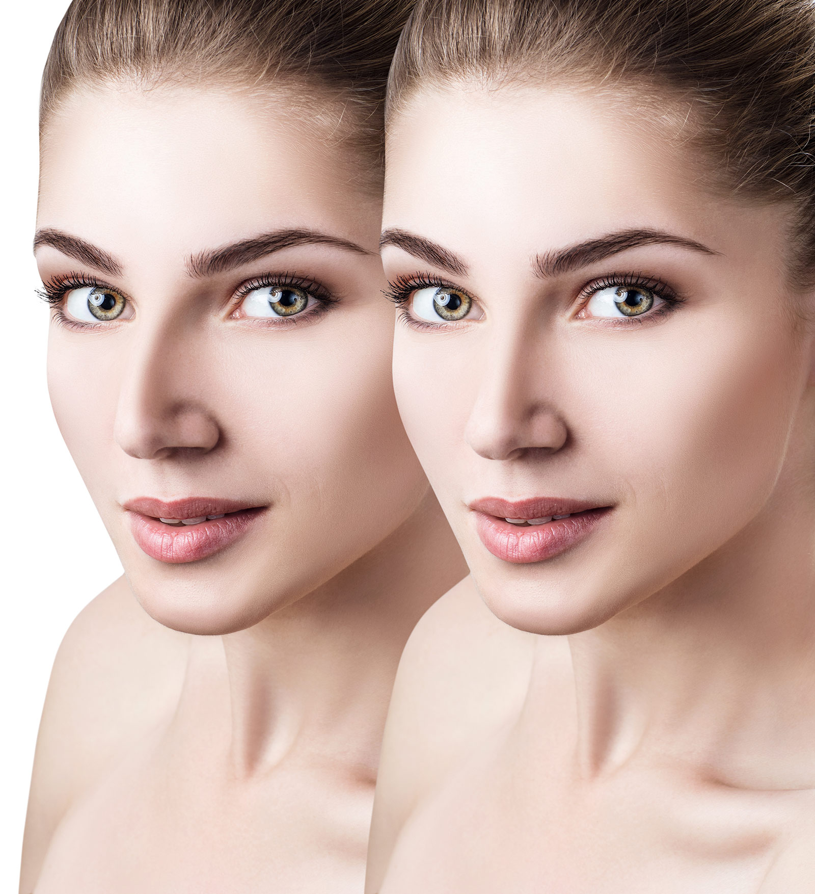 Woman's face, Before and After Rhinoplasty Treatment, face oblique view