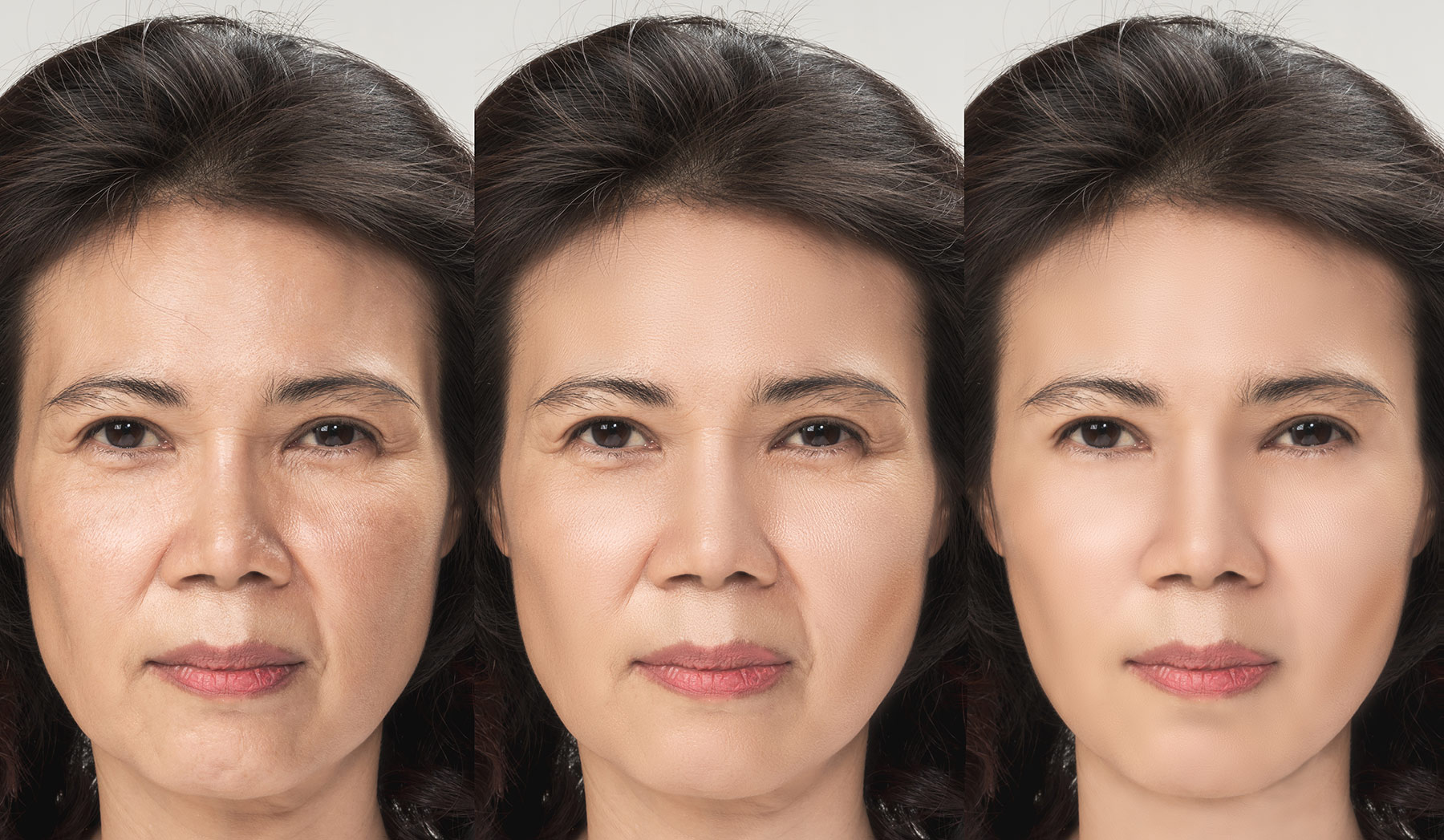 Facelift surgery (surgery areas on the head)