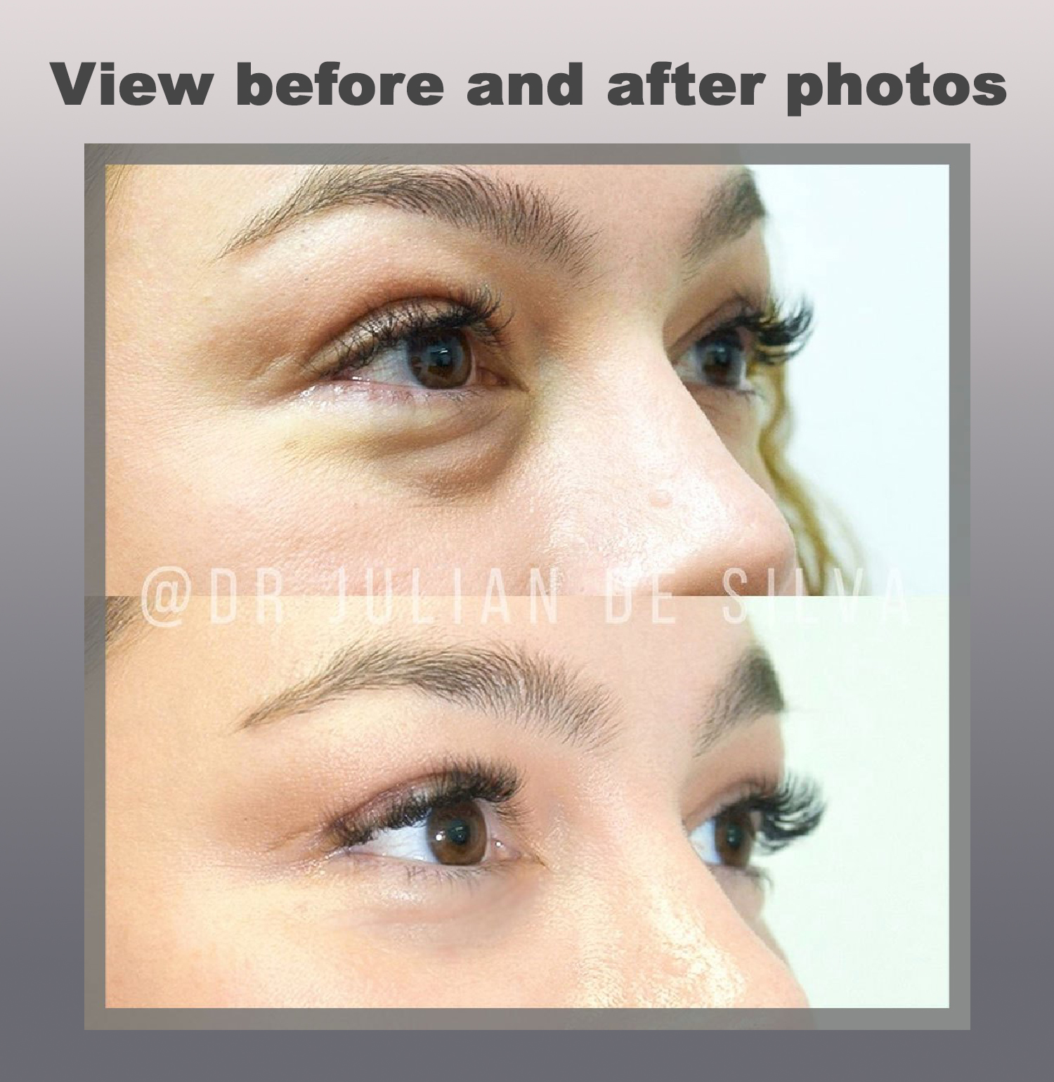 Blepharoplasty - View Before and After photos