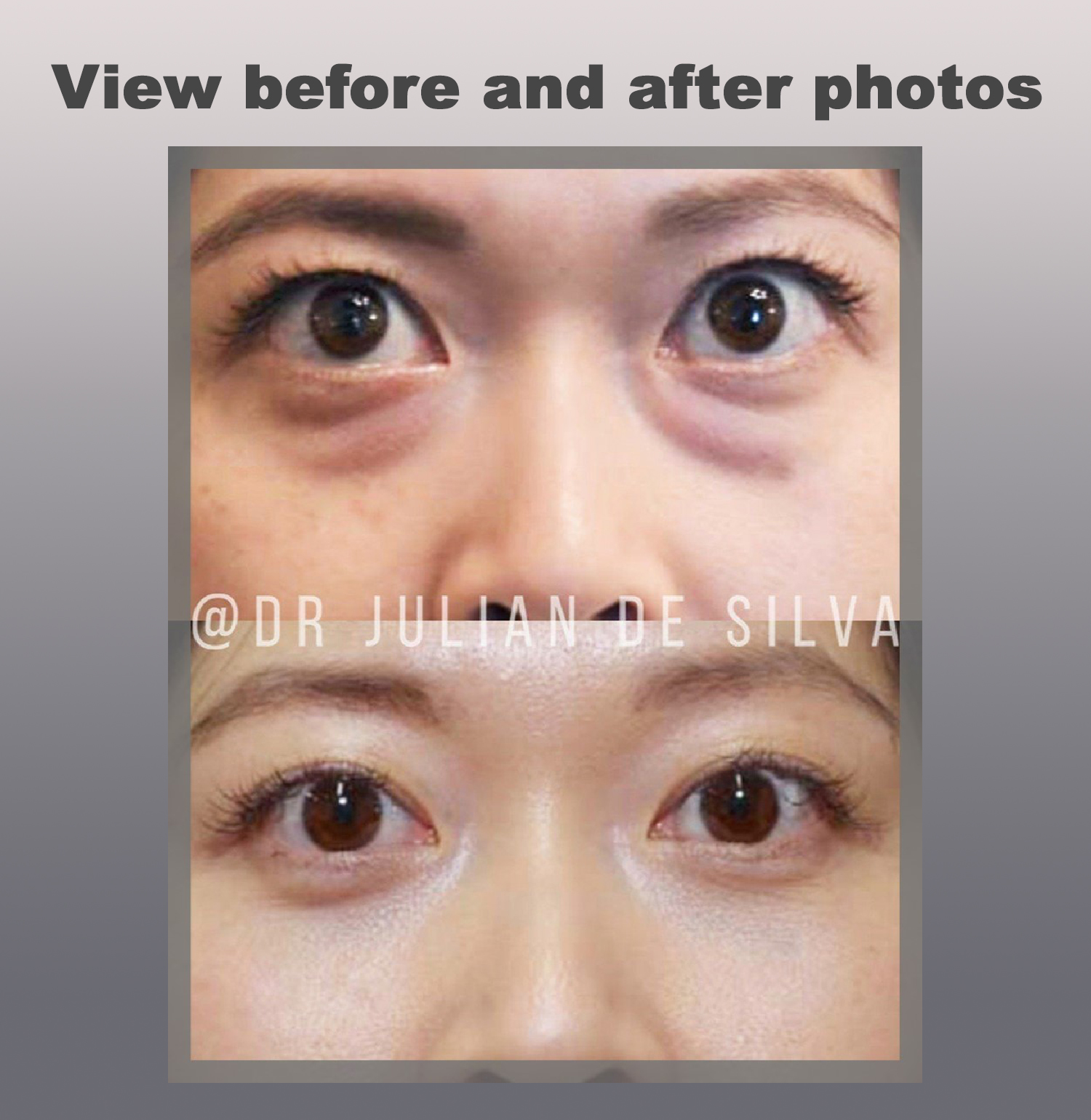 View Before and After Asian blepharoplasty Treatment photos