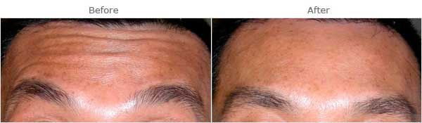 Facial aging: Forehead wrinkles, before and after treatment, front view, patient 1