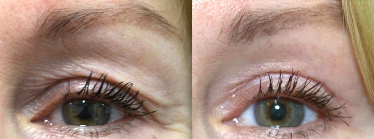Woman's face: Before and after Laser Resurfacing Treatment - eyelids, front view
