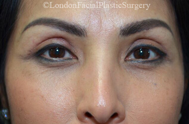 Upper Eyelid (Blepharoplasty) Surgery - Female face, after treatment photo, front view